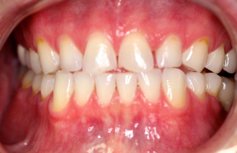 Front Teeth Before Composite Veneers