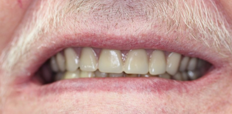 After Upper Denture