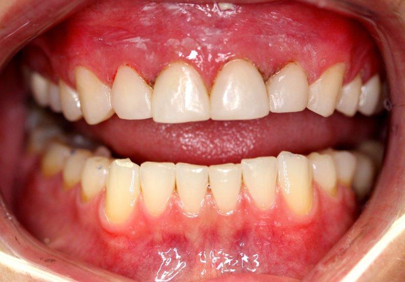 Front Teeth After Composite Veneers