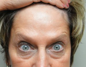 Forehead after Botox® Cosmetic