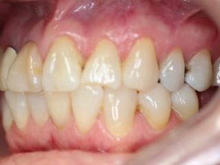 Before Cosmetic Crowns (side) - Patient 1