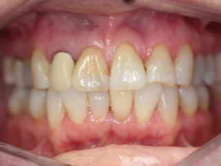 Before Cosmetic Crowns - Patient 1