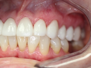 After Cosmetic Crowns (side) - Patient 1