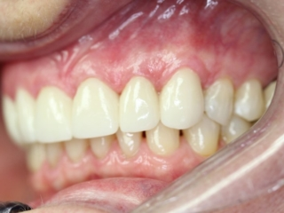 After Cosmetic Crowns - Patient 2