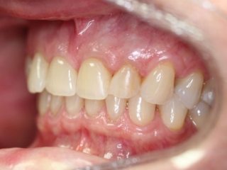 Before Cosmetic Crowns - Patient 2