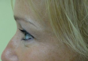 Crow's Feet After Botox® Cosmetic