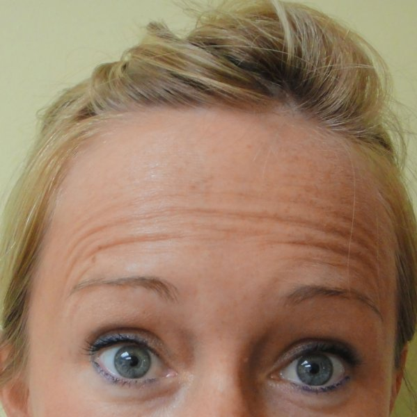 Forehead Before Botox® Cosmetic