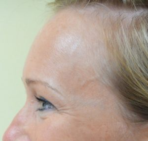 Crow's Feet Before Botox® Cosmetic