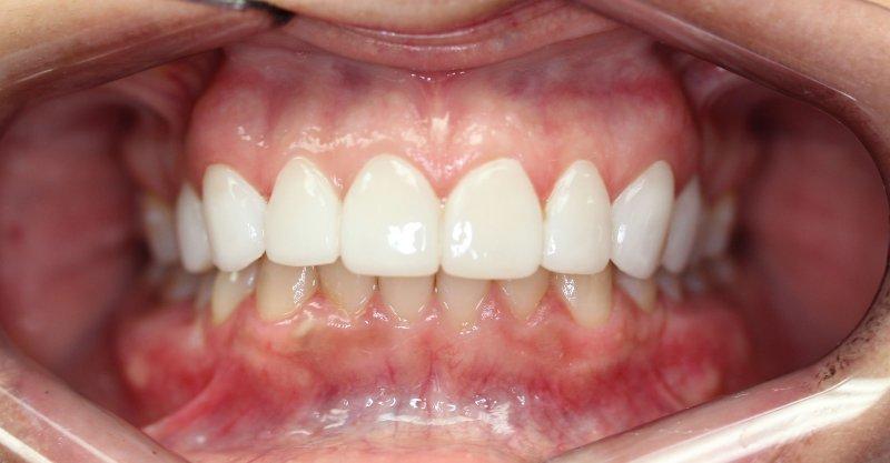 Teeth After LUMINEERS