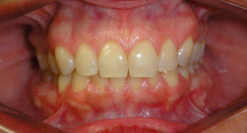 Teeth Before LUMINEERS